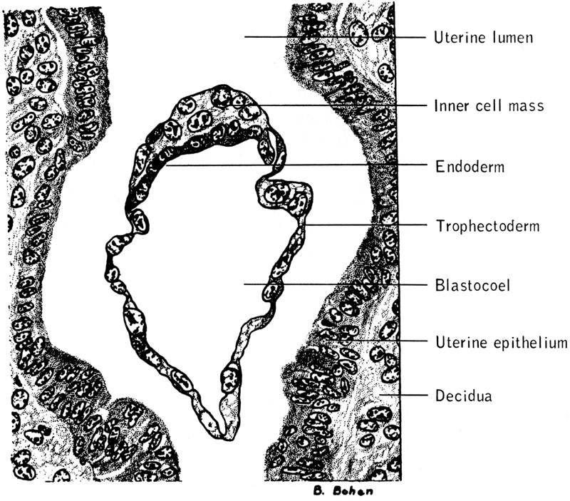 uterine decidua synthesises The internet journal of gynecology and is called the decidua it is called a decidual cast because it frequently comes out in the shape of the uterine.